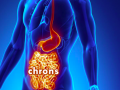 Chrone's Disease
